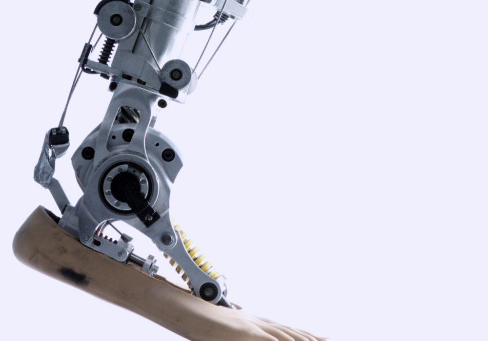 Gambe bioniche: passi in avanti